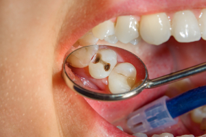 Photo of caries in human teeth.